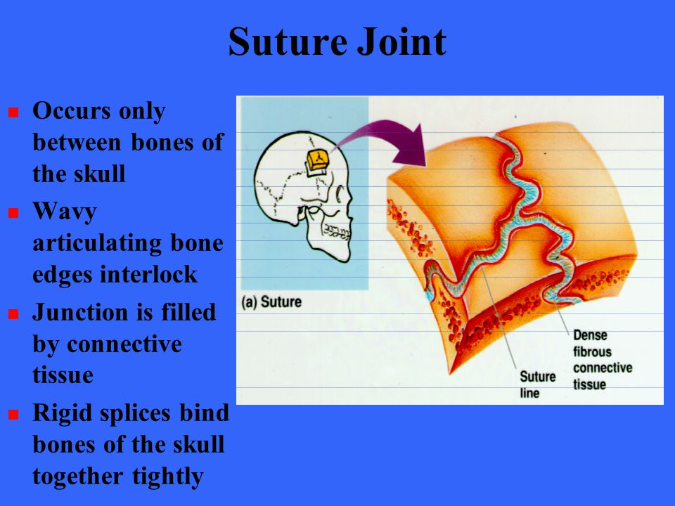 Suture Joint Occurs only between bones of the skull