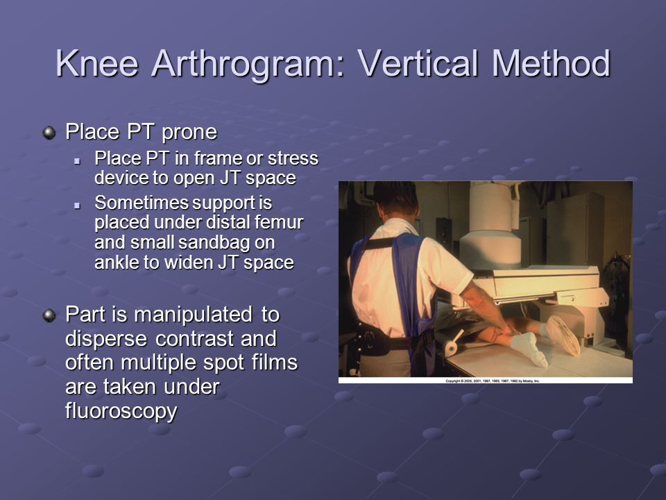 Knee Arthrogram: Vertical Method