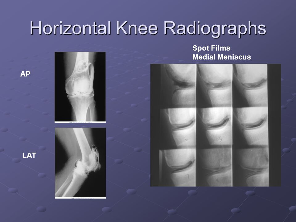 Horizontal Knee Radiographs