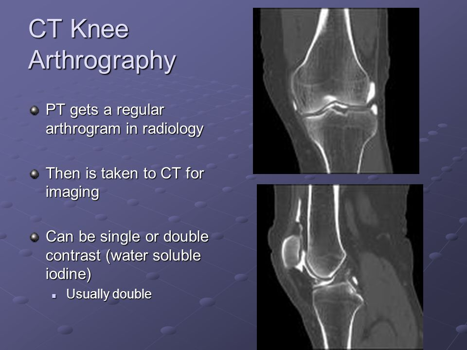CT Knee Arthrography PT gets a regular arthrogram in radiology