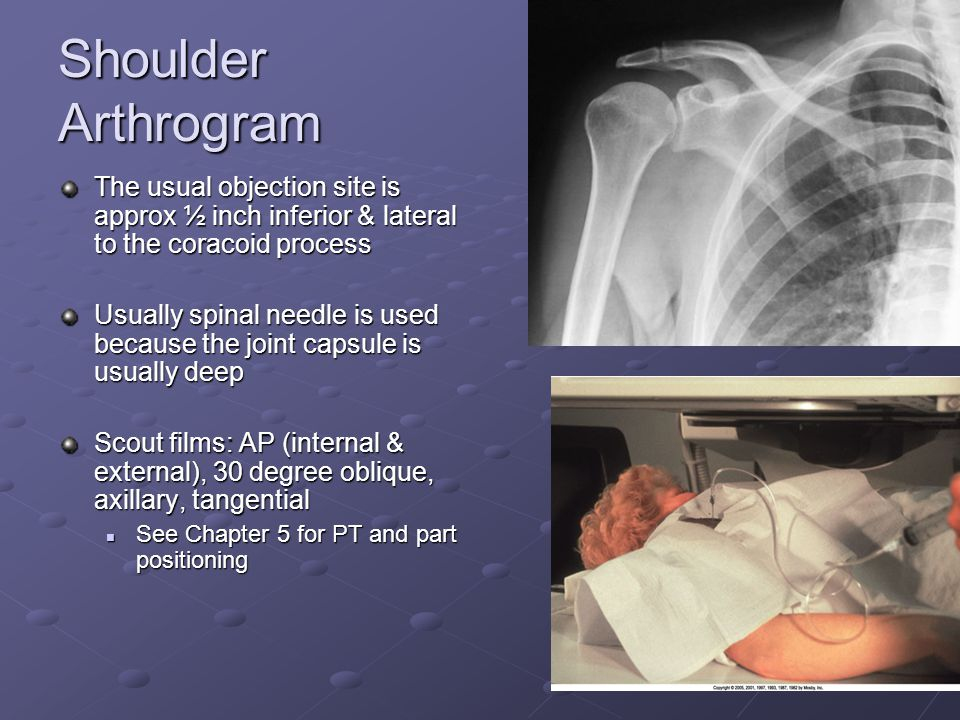 Shoulder Arthrogram The usual objection site is approx ½ inch inferior & lateral to the coracoid process.