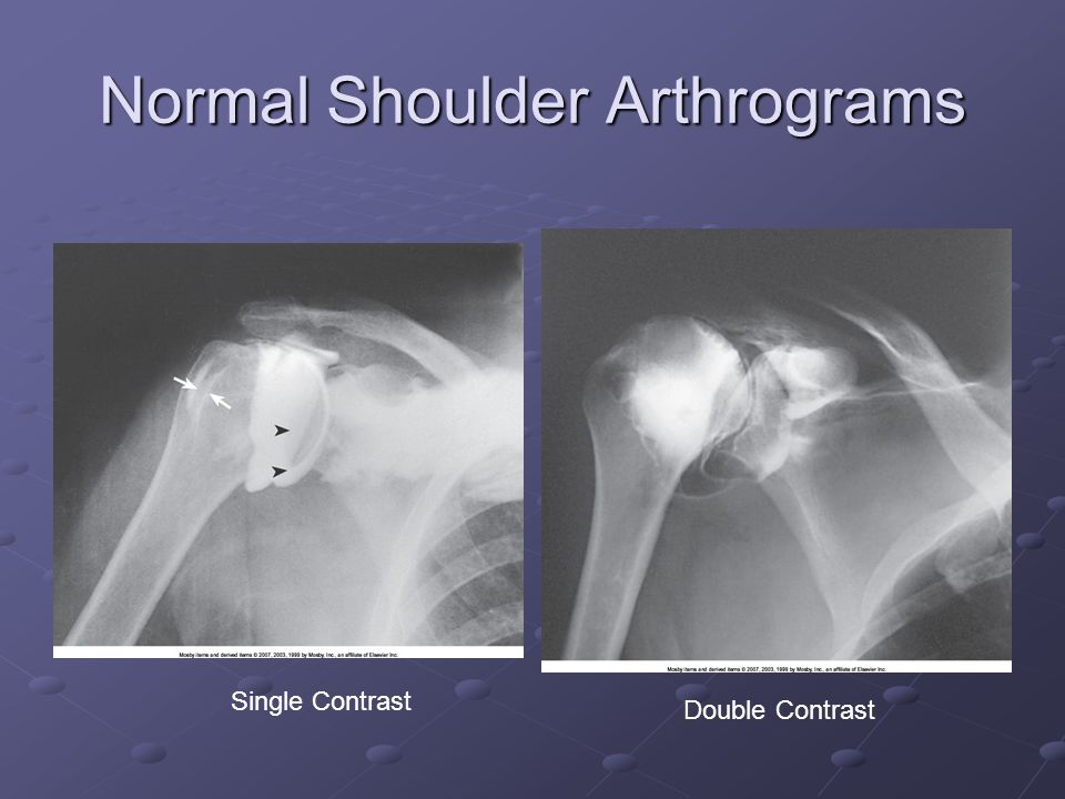 Normal Shoulder Arthrograms