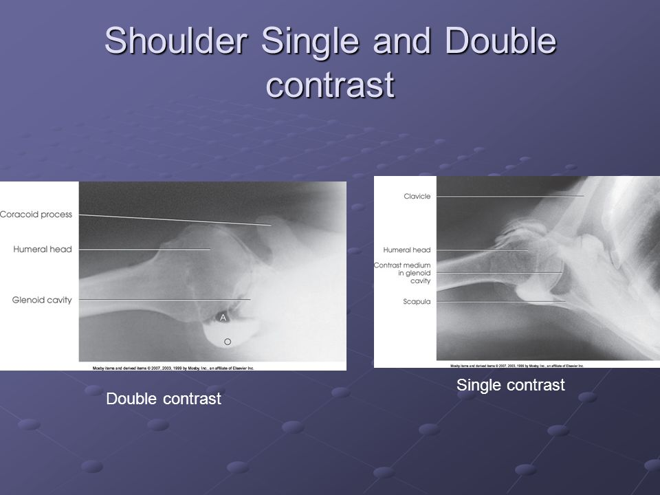 Shoulder Single and Double contrast