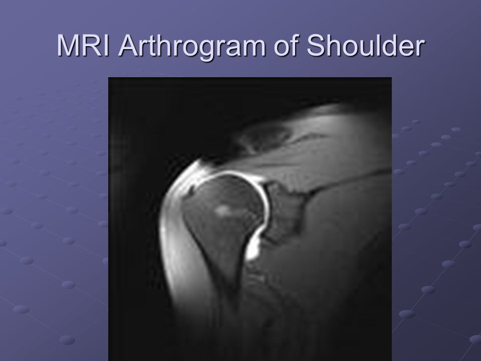 MRI Arthrogram of Shoulder