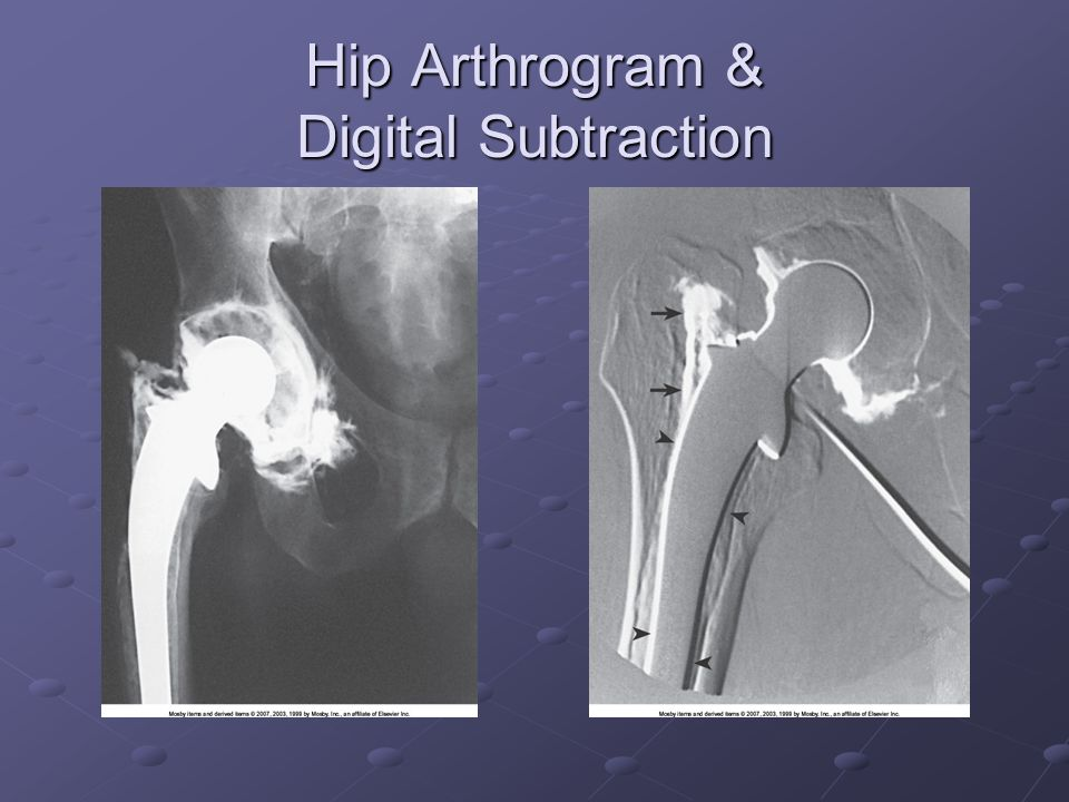 Hip Arthrogram & Digital Subtraction