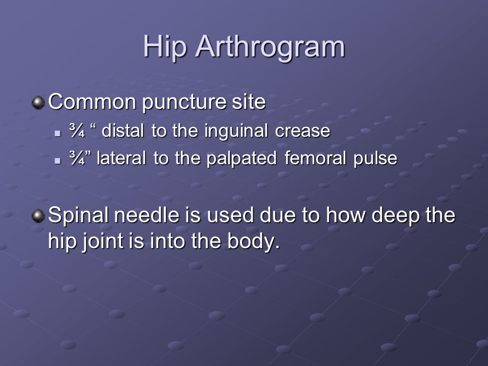 Hip Arthrogram Common puncture site