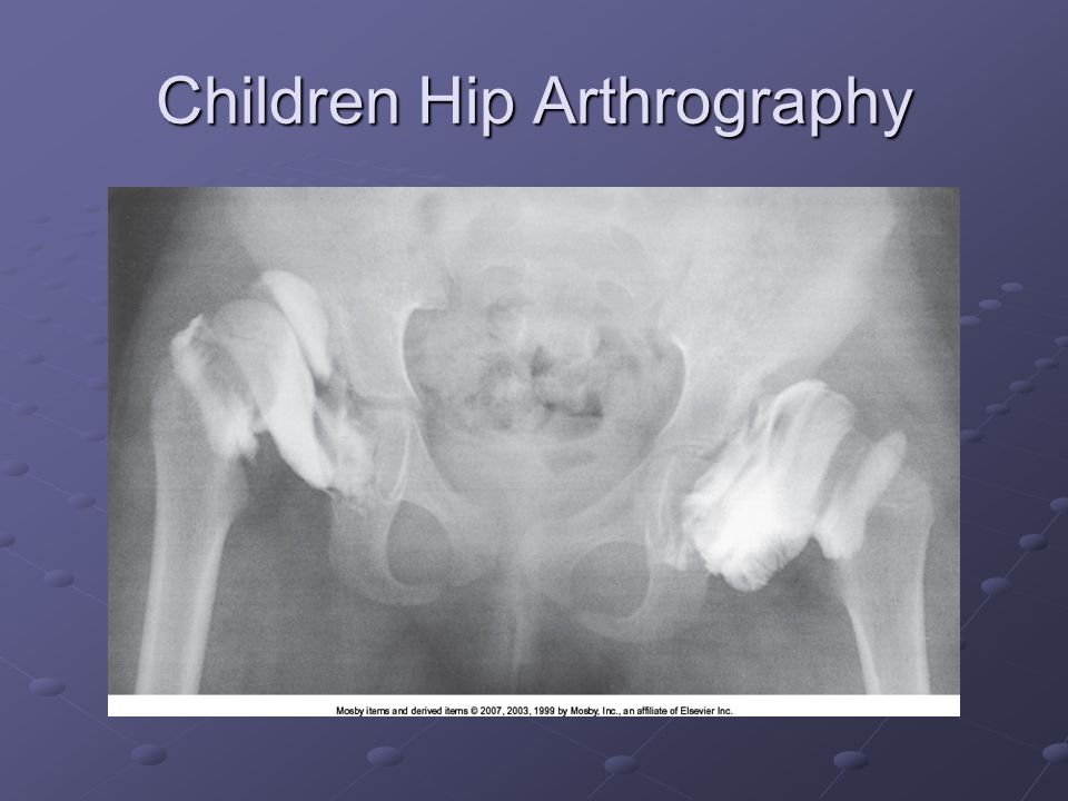 Children Hip Arthrography