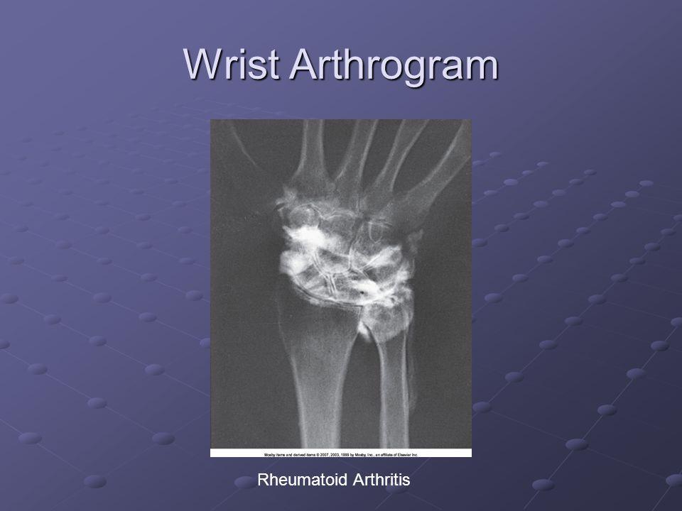 Wrist Arthrogram Rheumatoid Arthritis