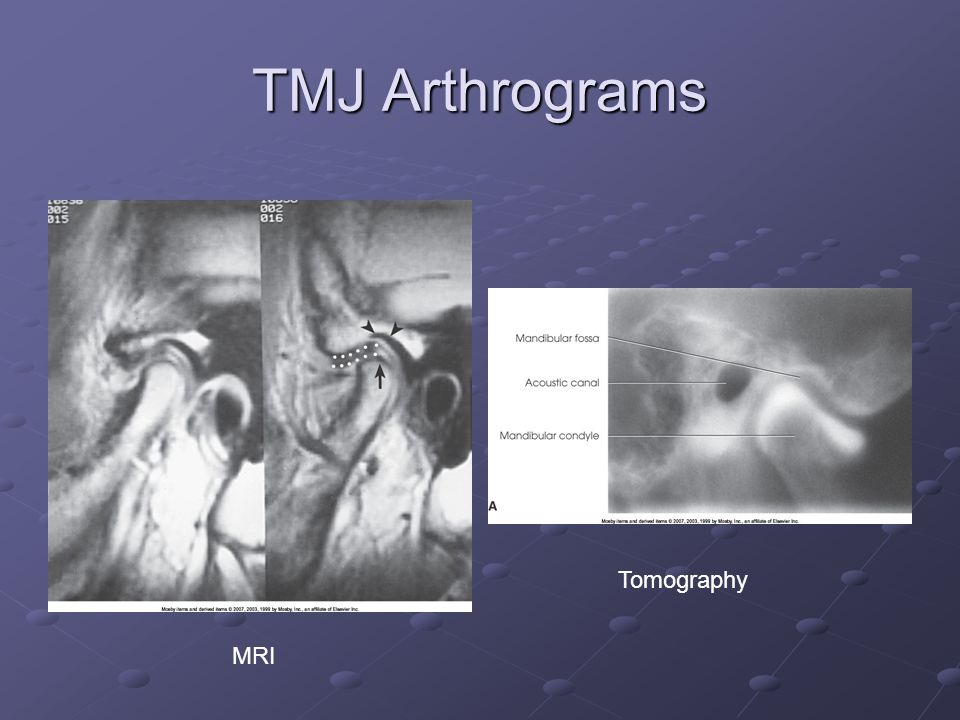 TMJ Arthrograms Tomography MRI
