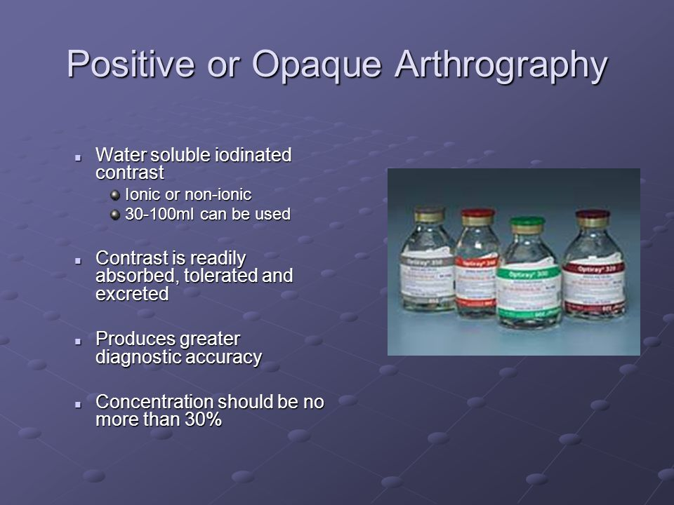 Positive or Opaque Arthrography