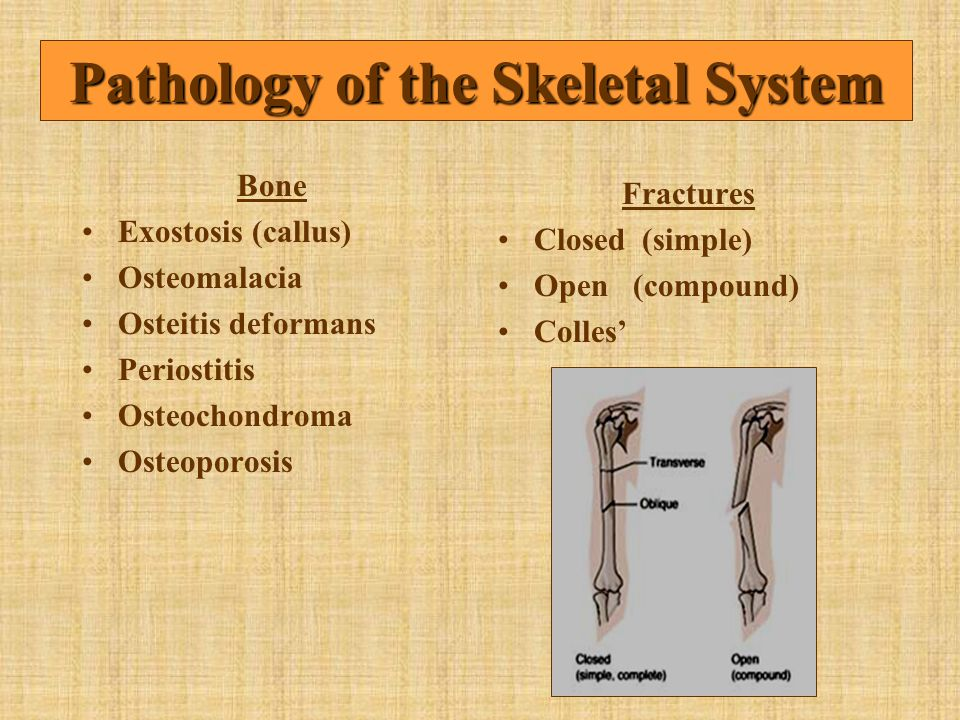 Pathology of the Skeletal System