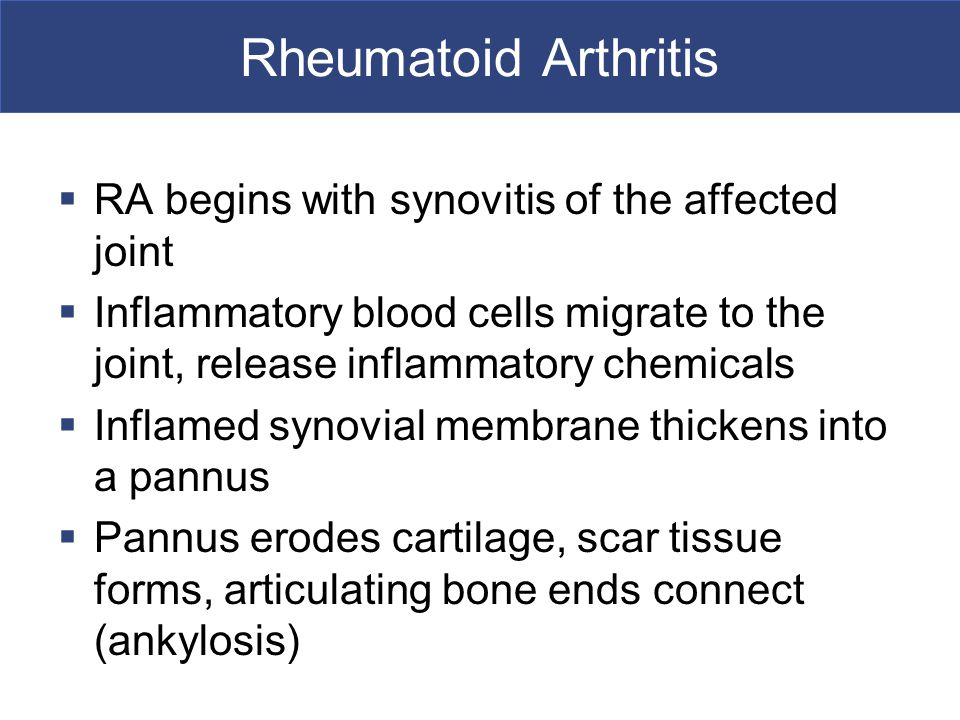 Rheumatoid Arthritis RA begins with synovitis of the affected joint
