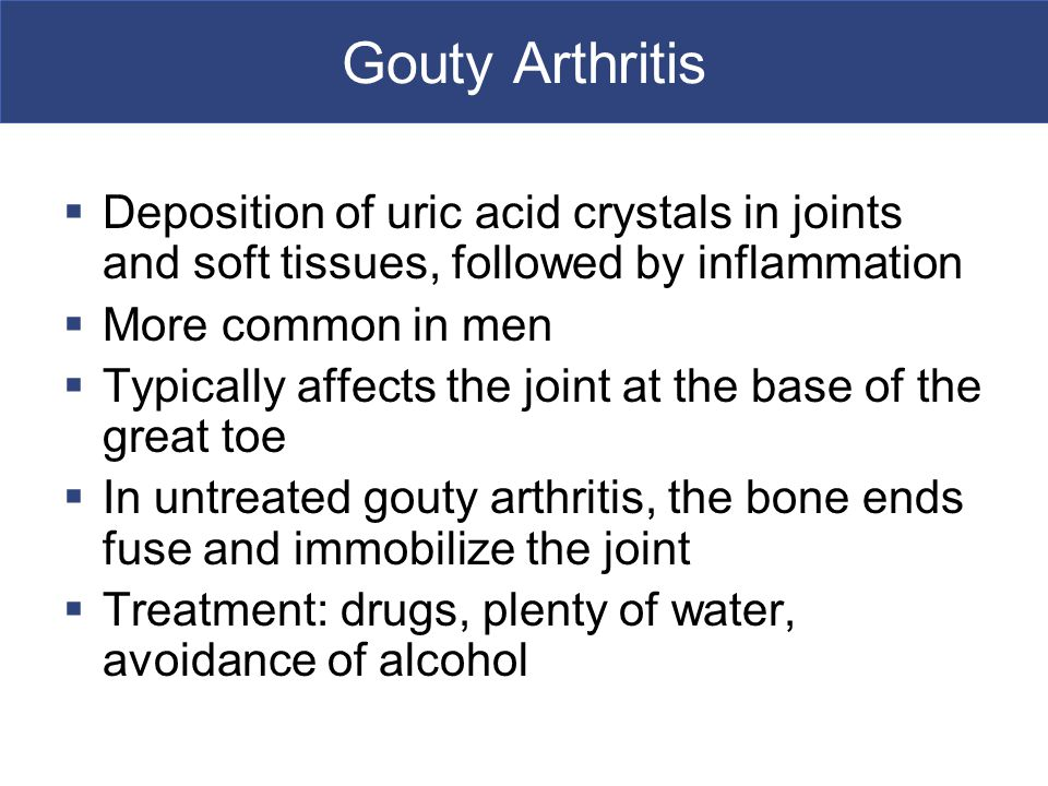 Gouty Arthritis Deposition of uric acid crystals in joints and soft tissues, followed by inflammation.