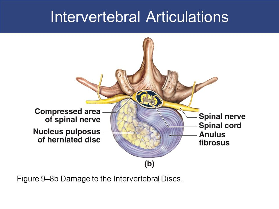 Intervertebral Articulations