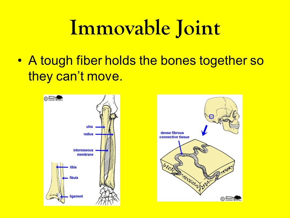 Immovable Joint A tough fiber holds the bones together so they can't move.