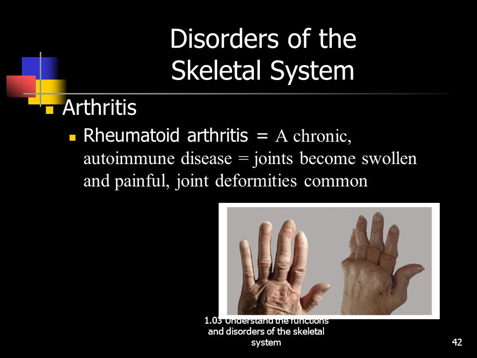 Disorders of the Skeletal System