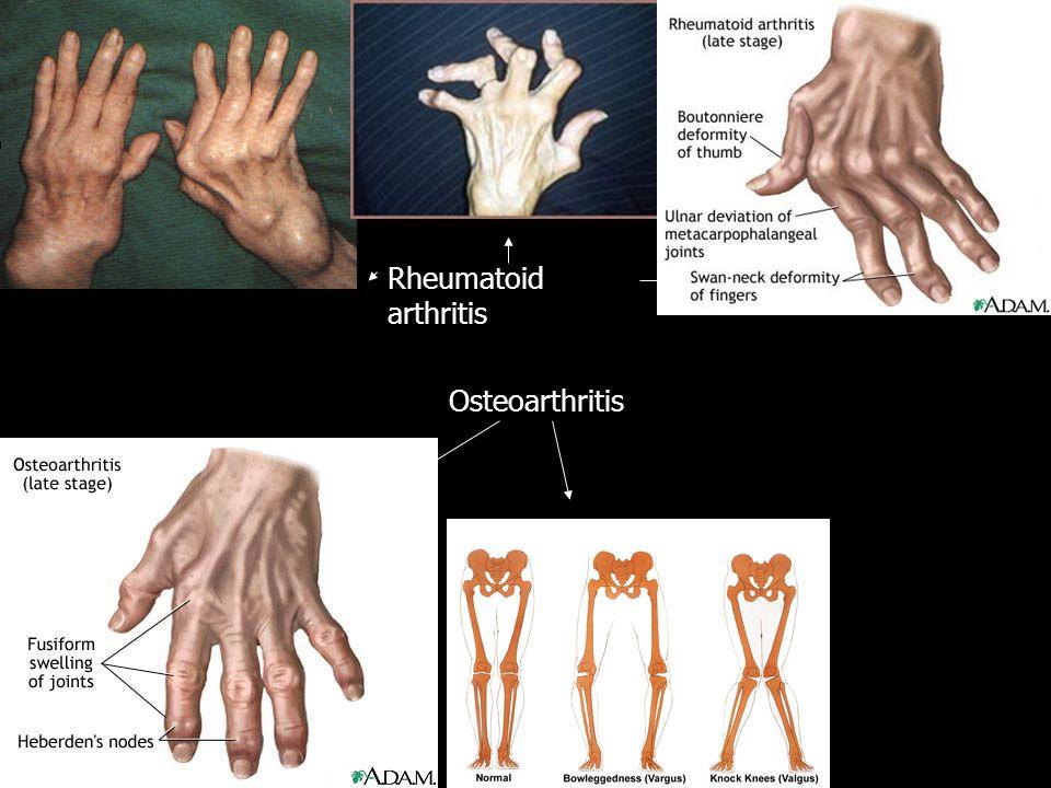 Rheumatoid arthritis Osteoarthritis