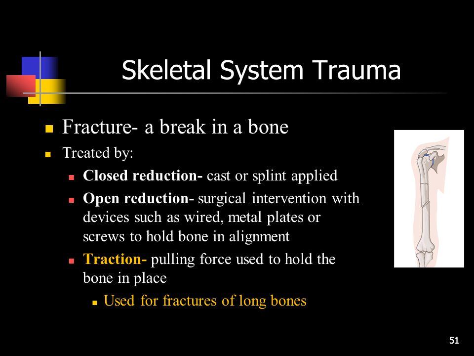 Skeletal System Trauma