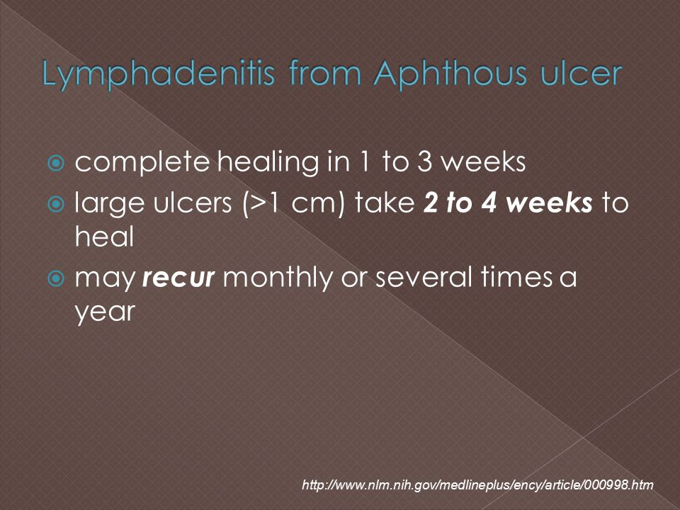 Lymphadenitis from Aphthous ulcer
