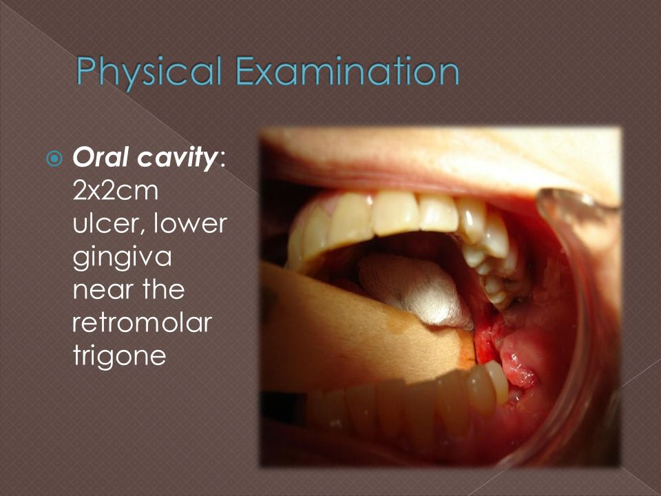 Physical Examination Oral cavity: 2x2cm ulcer, lower gingiva near the retromolar trigone