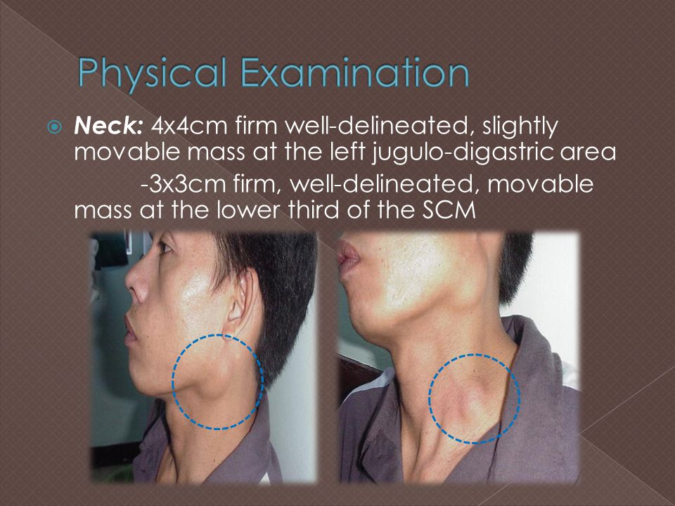 Physical Examination Neck: 4x4cm firm well-delineated, slightly movable mass at the left jugulo-digastric area.