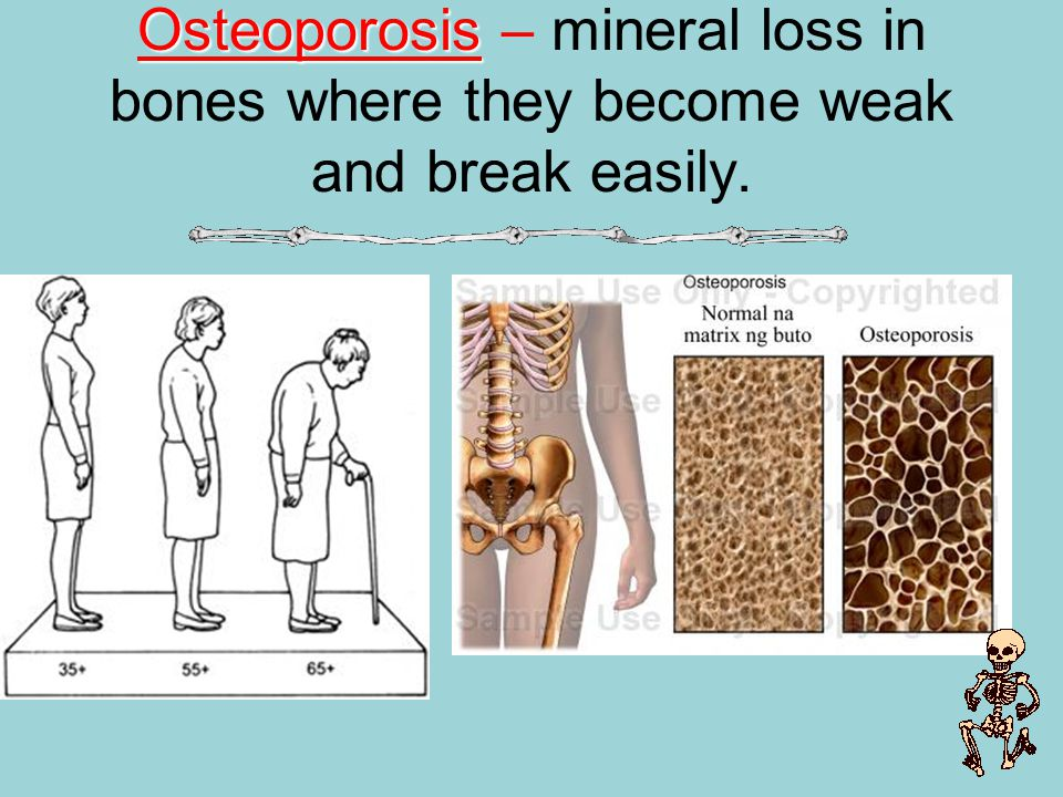 Osteoporosis – mineral loss in bones where they become weak and break easily.