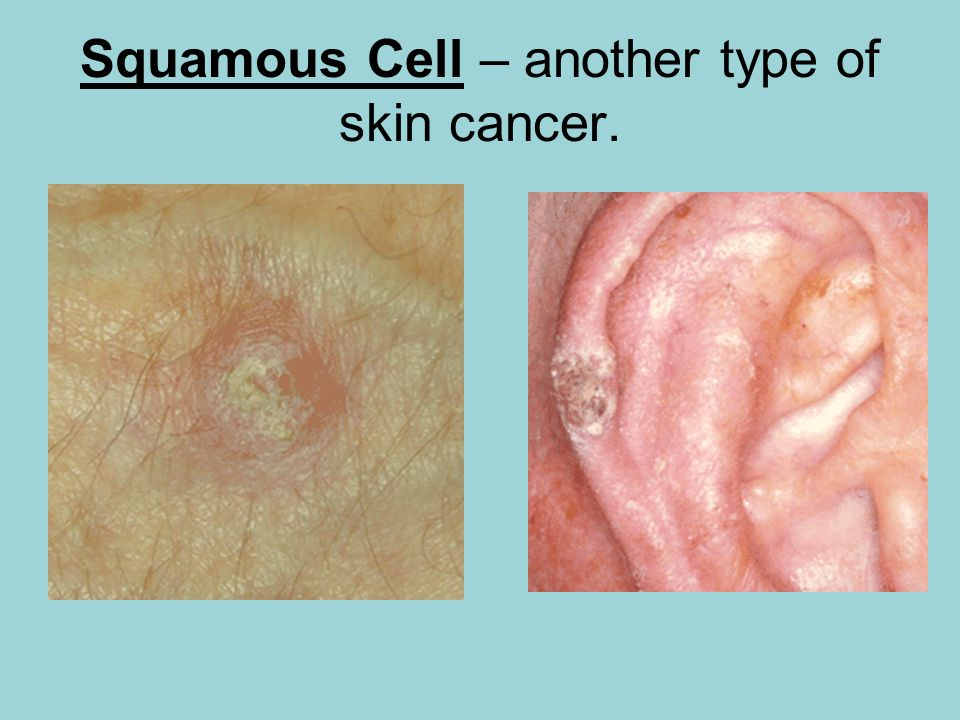 Squamous Cell – another type of skin cancer.