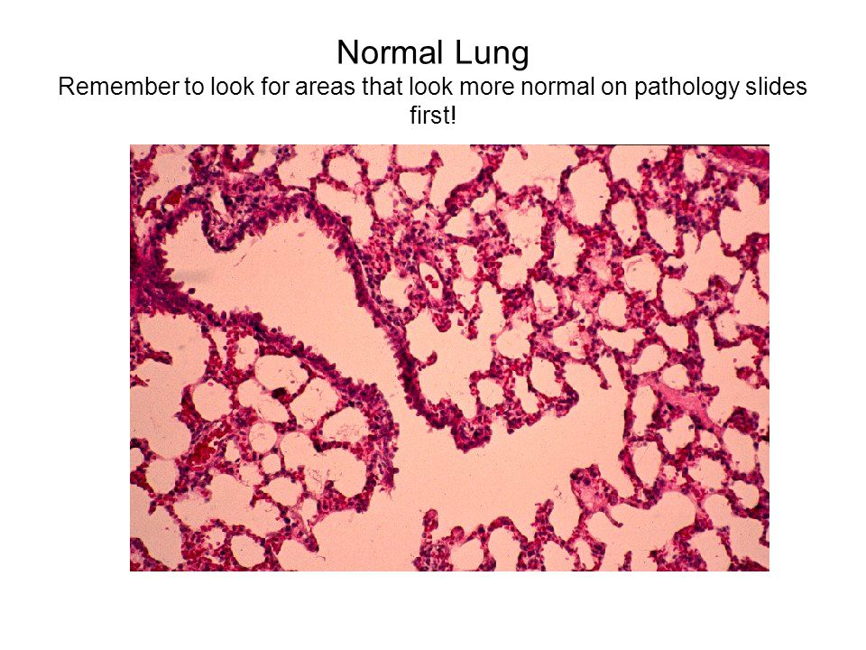 Normal Lung Remember to look for areas that look more normal on pathology slides first!