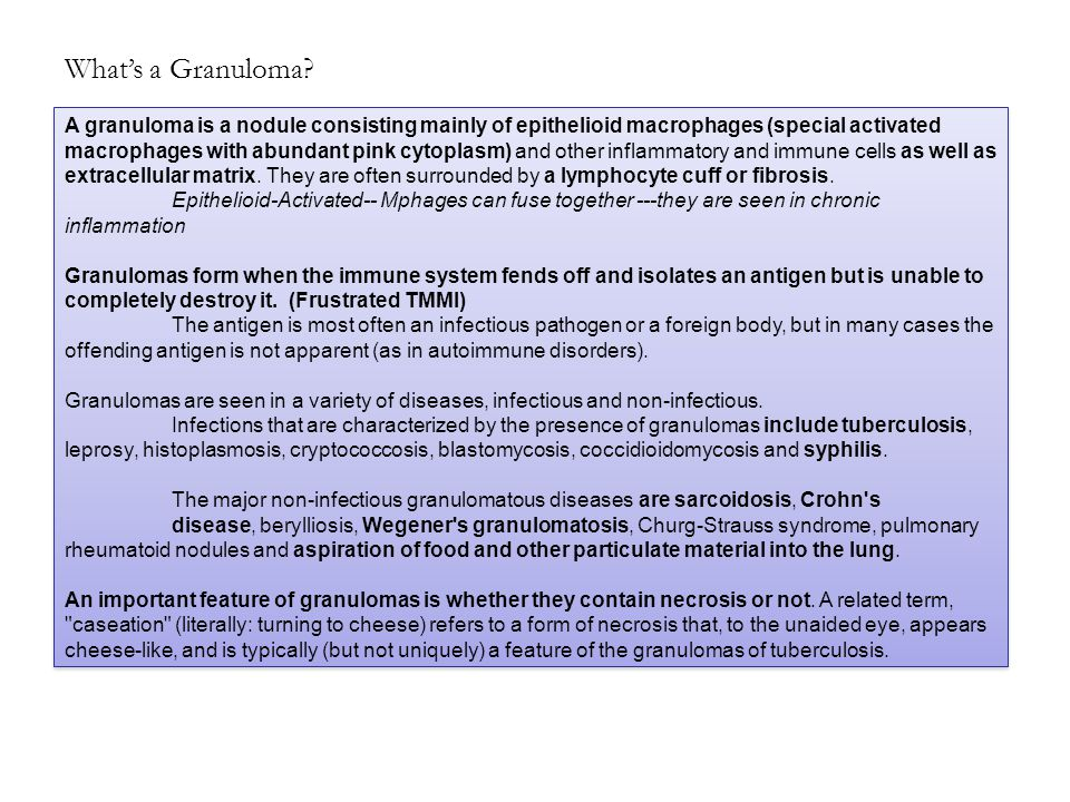 What's a Granuloma