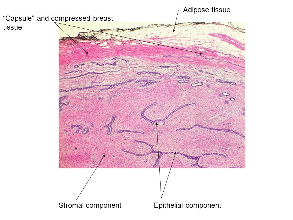 Adipose tissue Capsule and compressed breast tissue Stromal component Epithelial component