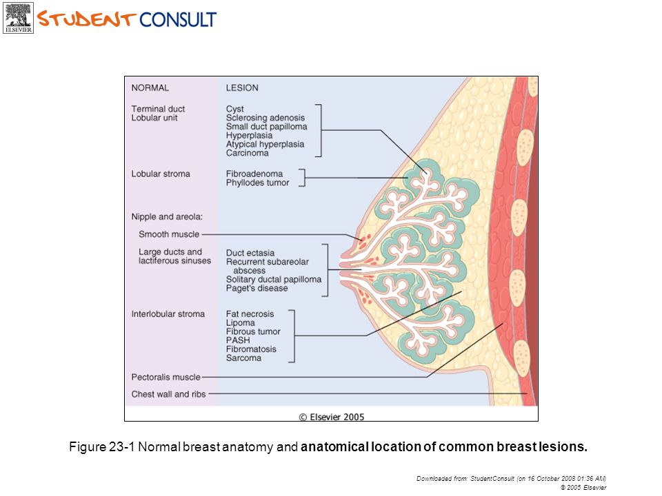 Figure 23-1 Normal breast anatomy and anatomical location of common breast lesions.