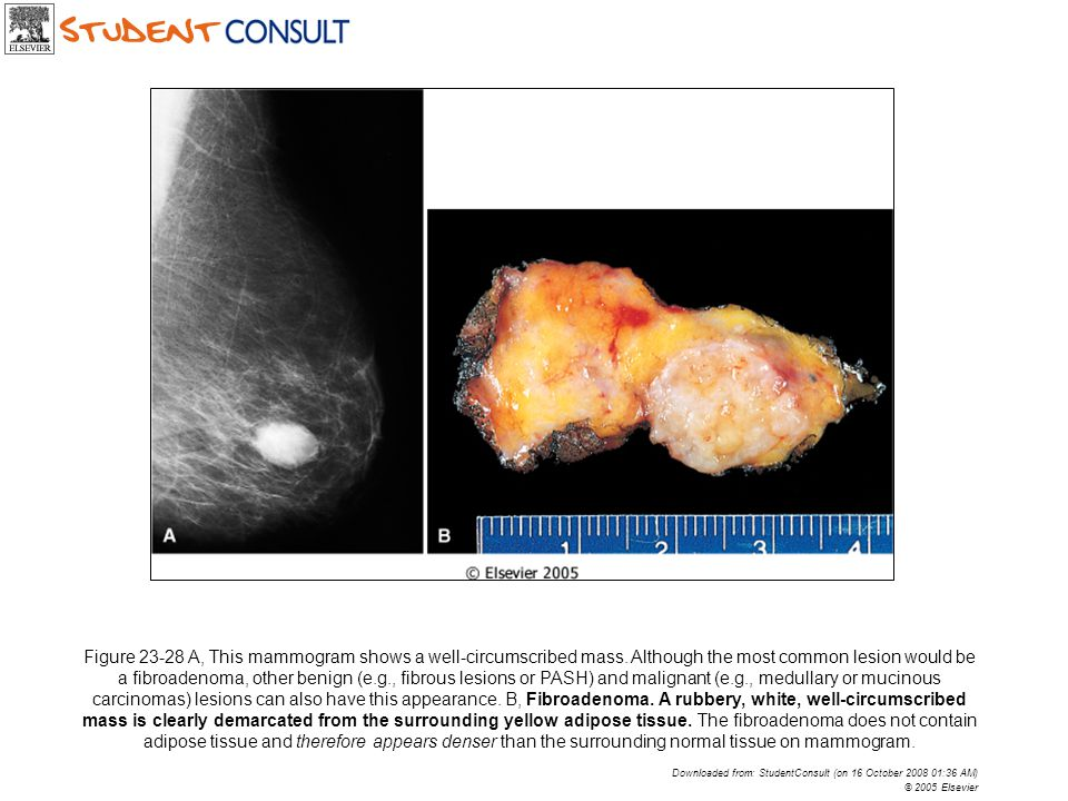 Figure 23-28 A, This mammogram shows a well-circumscribed mass