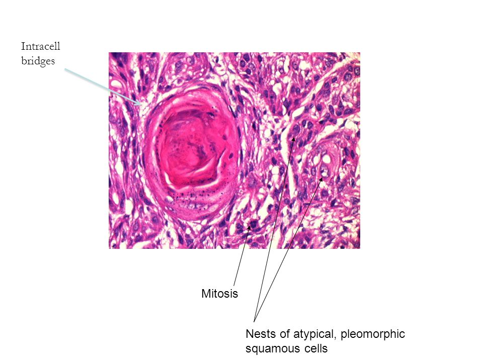 Intracell bridges Mitosis Nests of atypical, pleomorphic squamous cells