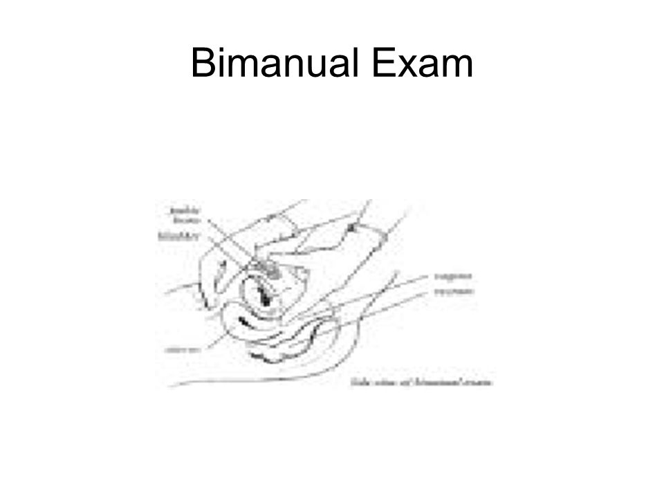 Bimanual Exam
