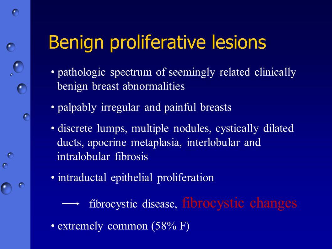 Benign proliferative lesions