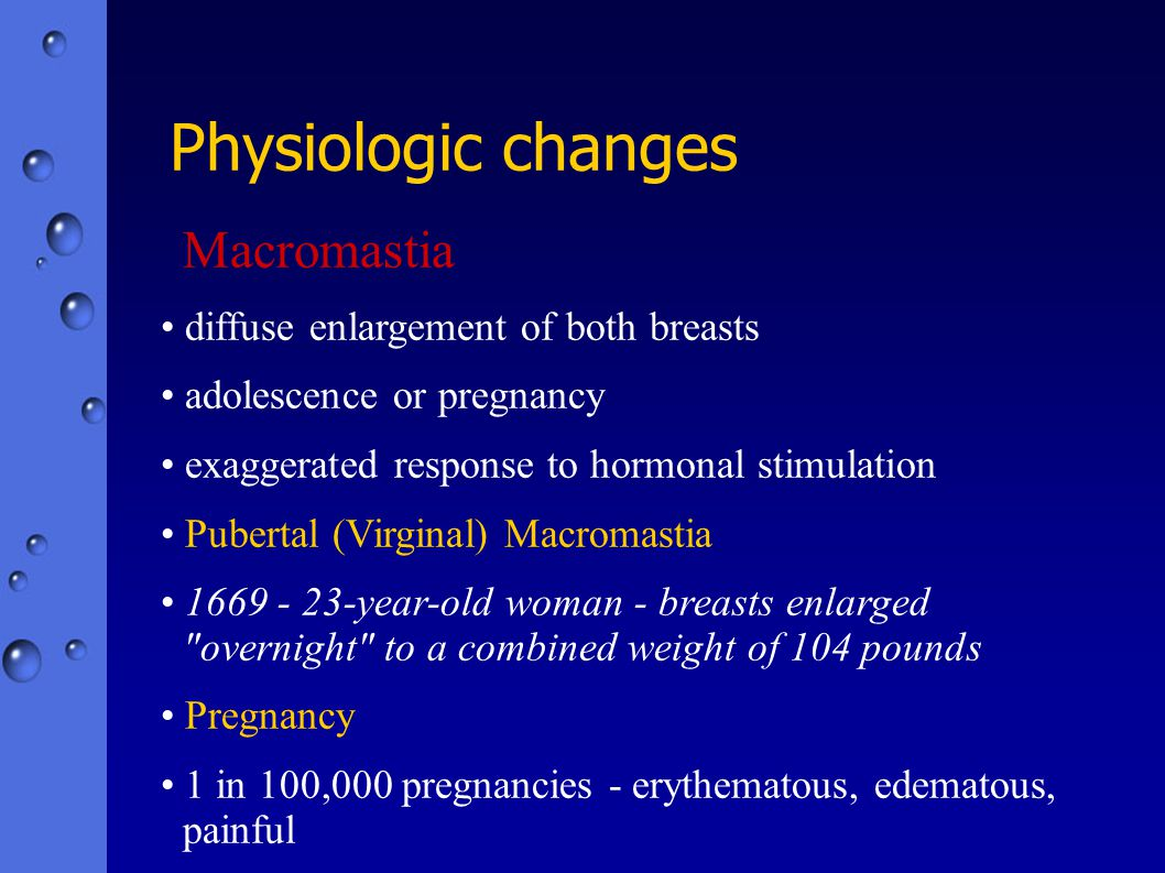 Physiologic changes Macromastia diffuse enlargement of both breasts