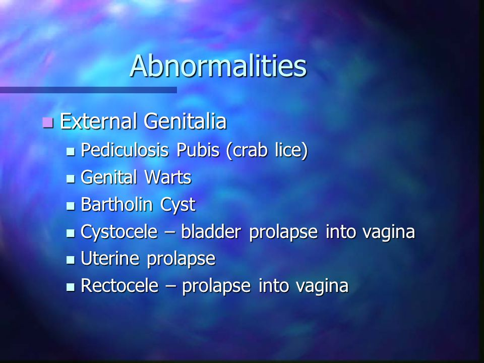 Abnormalities External Genitalia Pediculosis Pubis (crab lice)