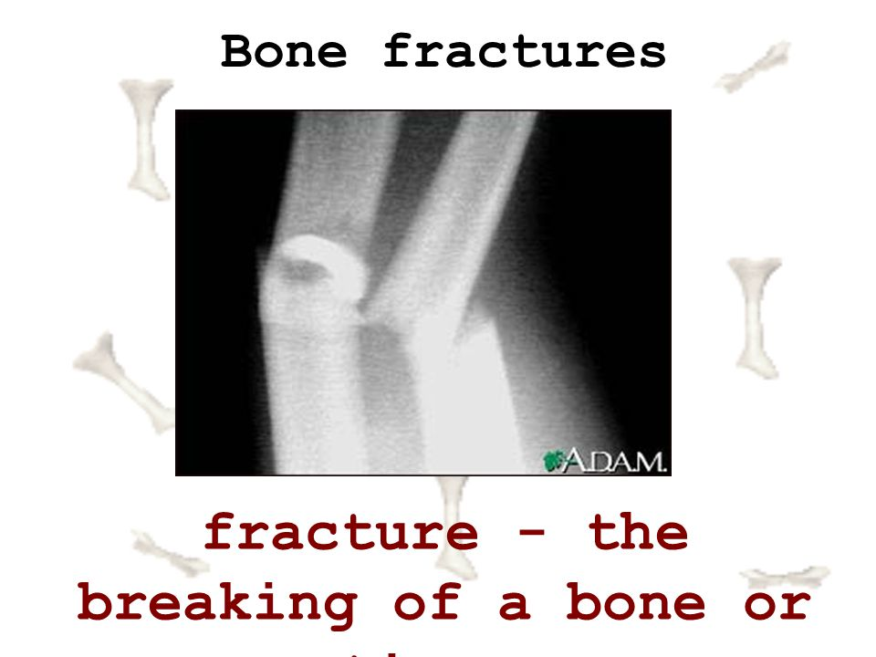fracture - the breaking of a bone or tissue