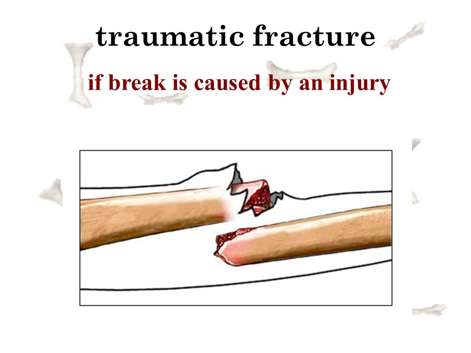 if break is caused by an injury