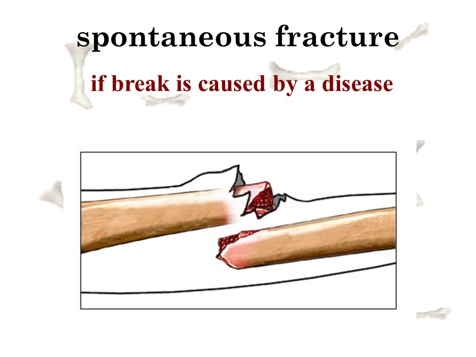 if break is caused by a disease