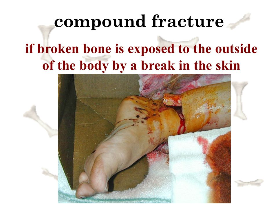 compound fracture if broken bone is exposed to the outside of the body by a break in the skin