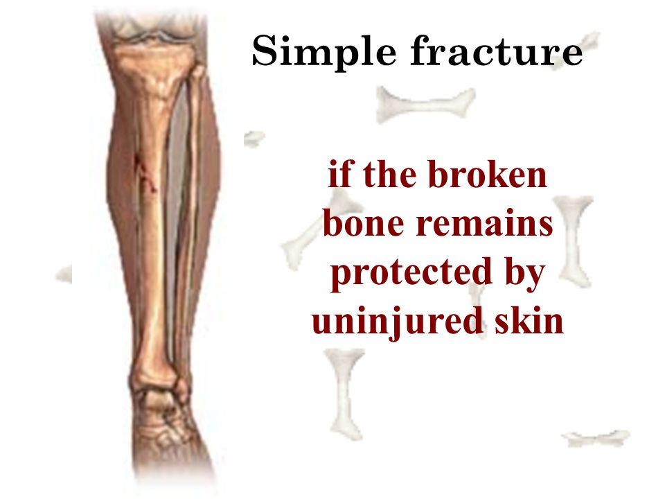 if the broken bone remains protected by uninjured skin