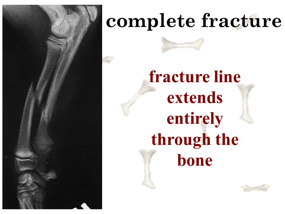 fracture line extends entirely through the bone