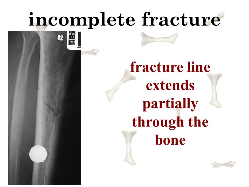 fracture line extends partially through the bone