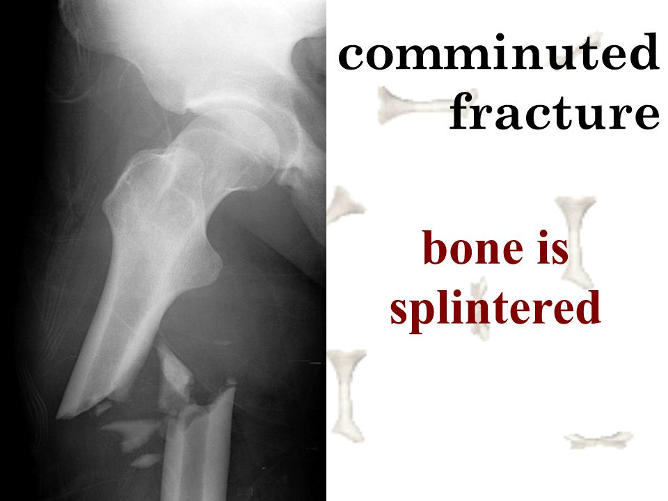 comminuted fracture bone is splintered