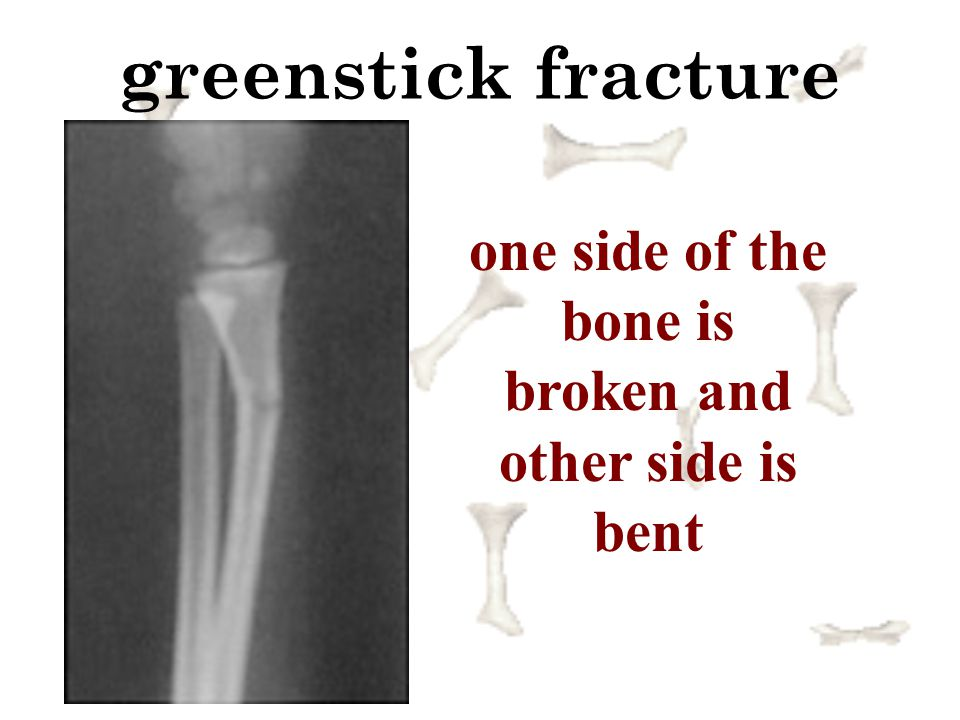one side of the bone is broken and other side is bent
