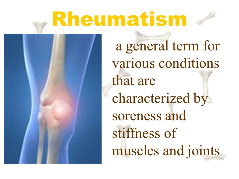 Rheumatism a general term for various conditions that are characterized by soreness and stiffness of muscles and joints.