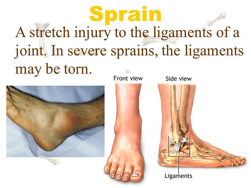 Sprain A stretch injury to the ligaments of a joint. In severe sprains, the ligaments may be torn.