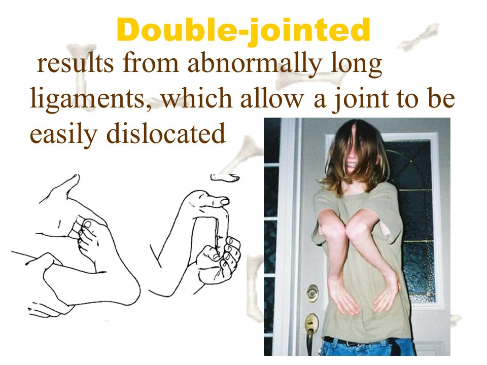 Double-jointed results from abnormally long ligaments, which allow a joint to be easily dislocated