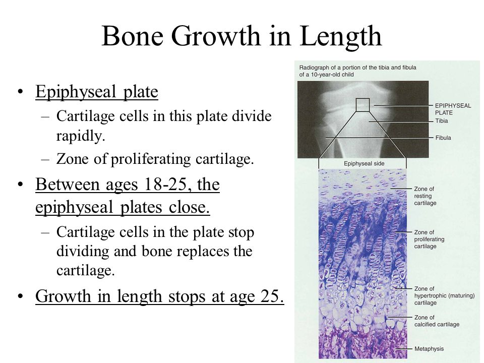 Bone Growth in Length Epiphyseal plate